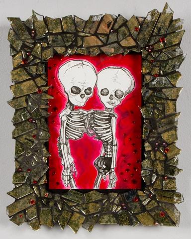 siamese fetal skeletons