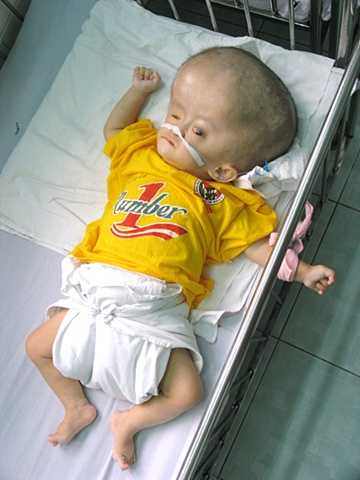 Go Vap Orphanage on the outskirts of Ho Chi Minh City houses some 300 children, many carrying pathologies associated with Agent Orange. Swelling of the head and brain is a common trait in children exposed to dioxin.