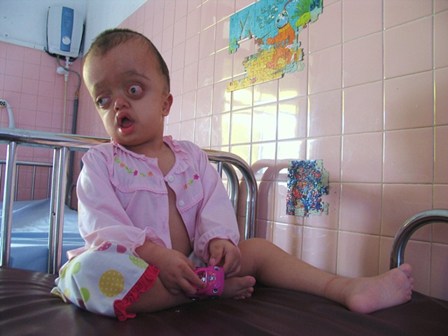 Dioxin has shaped this young girl's body into something I cannot fully understand.