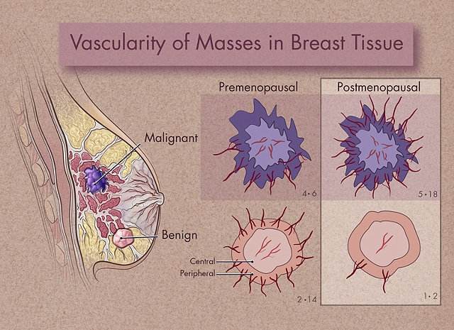 Breast Cancer Architecture