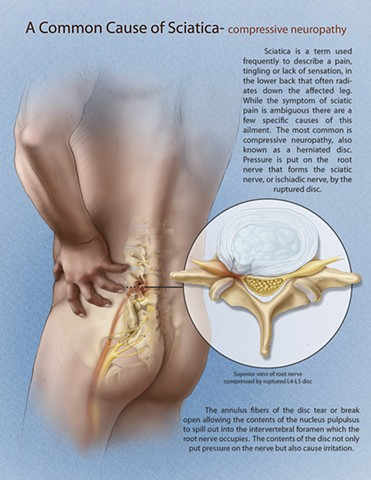 A Common Cause of Sciatica