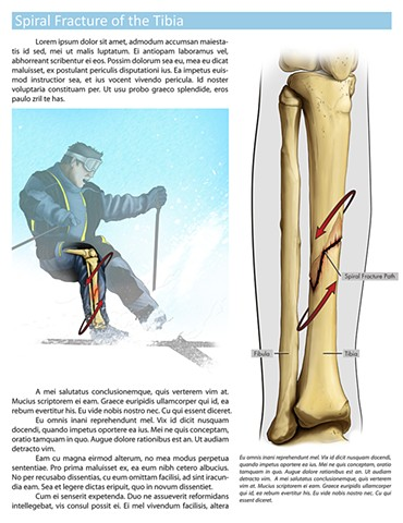 Spiral Fracture of the Tibia
