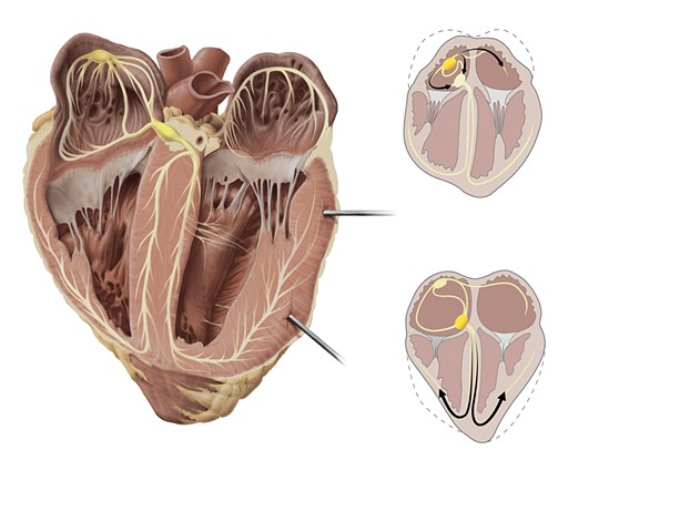 Sheep Heart Dissection Plate