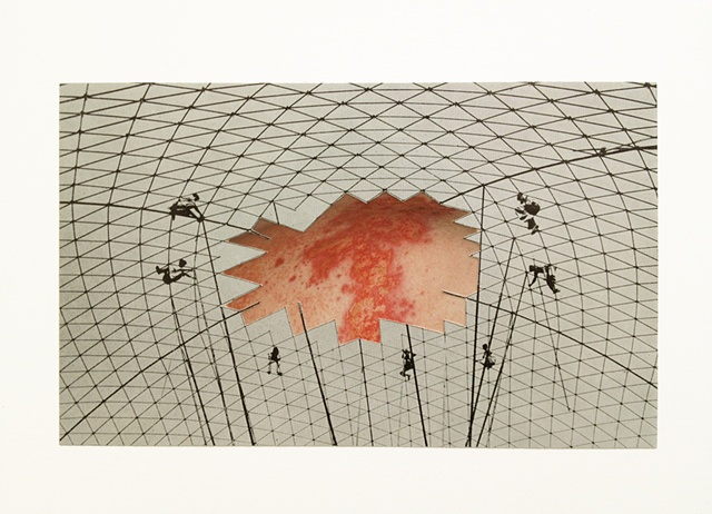 brian zimmerman, bryan zimmerman, art, artist, collage, dome, rash, gross