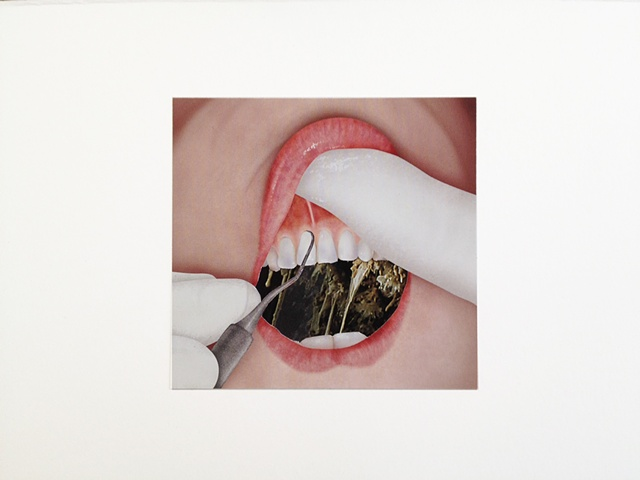 brian zimmerman, bryan zimmerman, art, artist, collage, mouth, gross