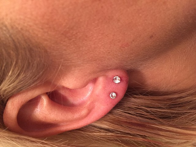thread less lobe piercing after reconstruction