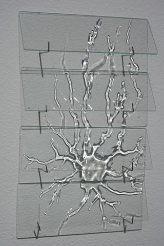 Temporal Vision: Microscope Slide - Neuron