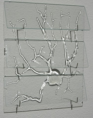Temporal Vision: Microscope Slide - Stellate Cell