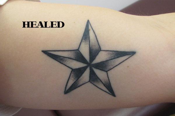 Nautical Star (Healed) on Lindsey