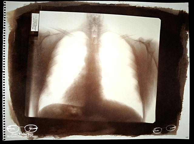 Van Dyke Brown created from my fathers  chest xray