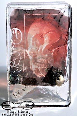 photo emulsion suspended in resin with real human tooth with broken filling