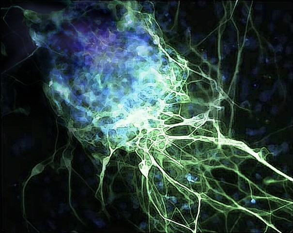stem cell differentiating into a neuron