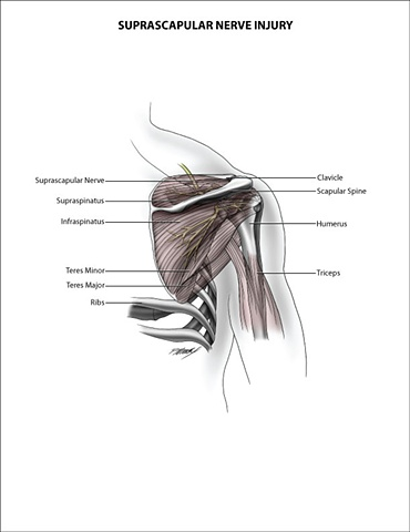 Suprascapular Nerve Injury