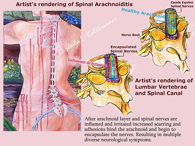 Art for Arachnoiditis