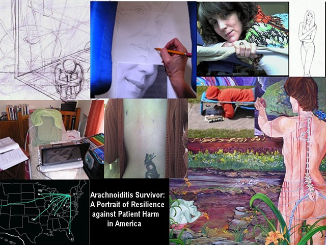 Arachnoiditis Survivor: A Portrait of Resilience Against Patient Harm In America (2014-2017)
