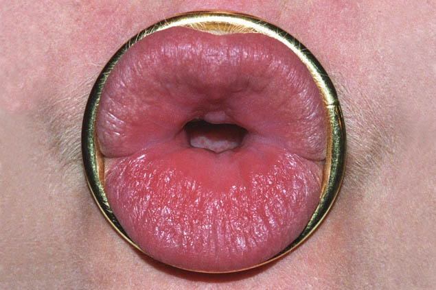 Smulovitz Lips Untitled (ring)