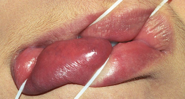 Anika Smulovitz Lips Untitled Manipulate 2