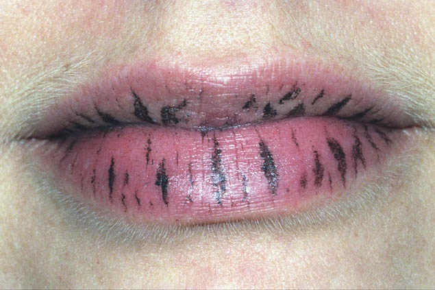 Anika Smulovitz Lips Untitled stripes