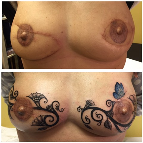 Scar cover up tattoo, scar tattoo, breast cancer tattoo, breast reconstruction tattoo, ct Tattooers, ct tattoo, lovecrafttattoo, 3D tattoo, 3D areola tattoo
