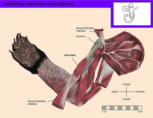 Medial View of the Deep Muscles of the Right Arm and Shoulder [Brachialis]