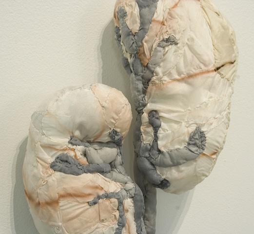 Detail (kidneys)