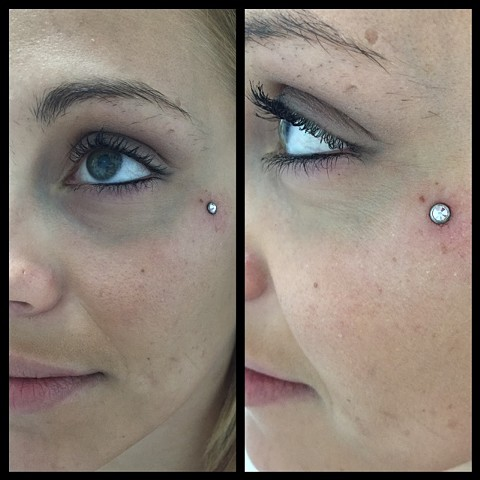 Teardop Microdermal