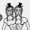 Agatha and Alice, Conjoined Twins