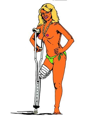 Nude amputee, tan with bikini