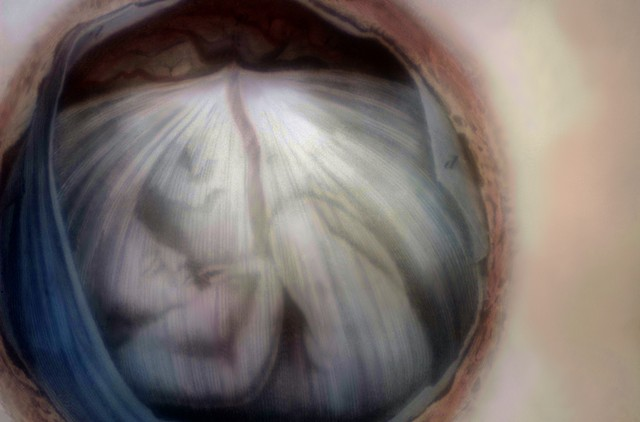 """Fetus in Utero  2014 zone plate photograph archival pigment print 13""""x20"""" from an etching by John and William Lazars, 1822"""