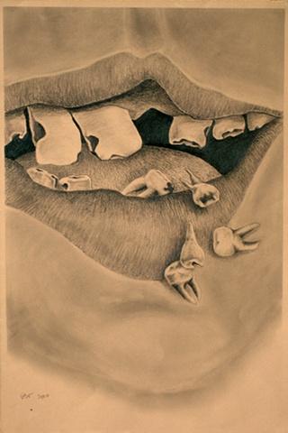 Dental Nightmare