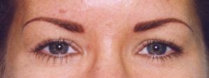 Eyebrows After