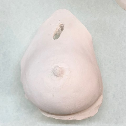 Exempel breast no 21