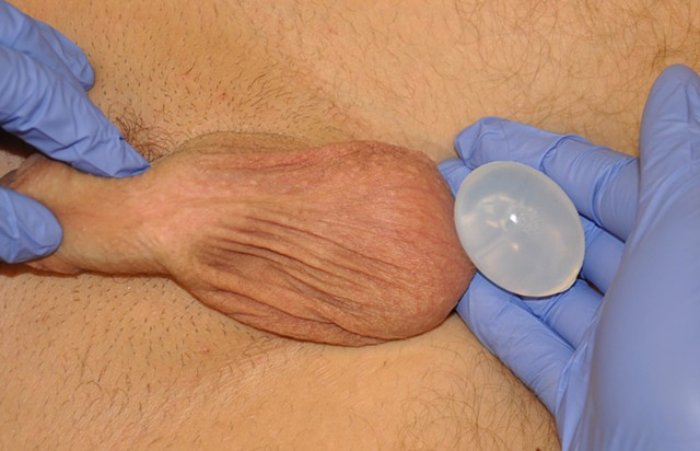artist michael barrett be a man los angeles performance art testicular cancer reconstructive plastic surgery