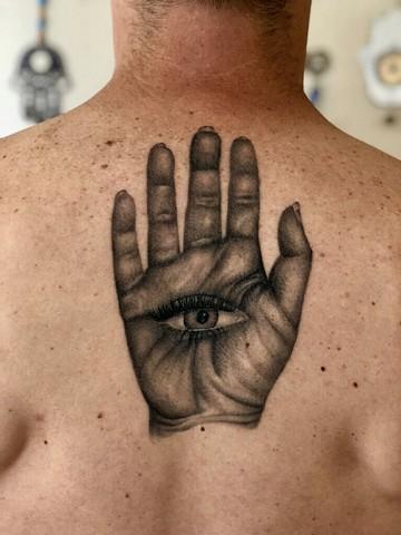 Hand eye healed