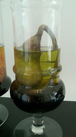 Gallbladder in Jar