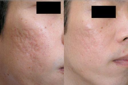 skin needling on acne scars