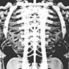 Twin Skeleton