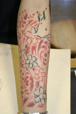 Andy, forearm
