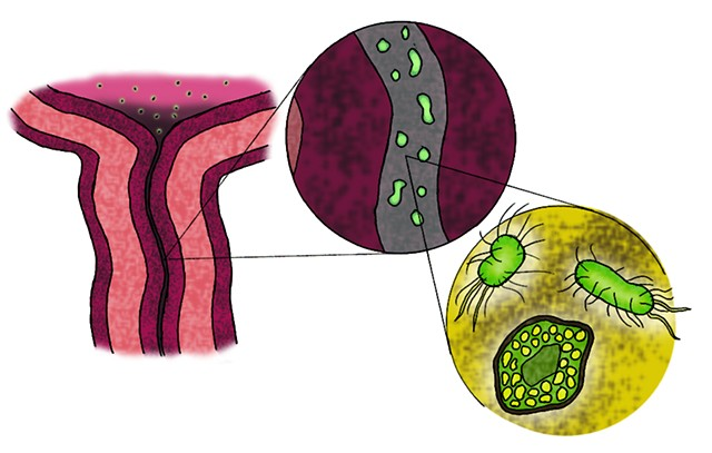 Urinary Infection Illustration