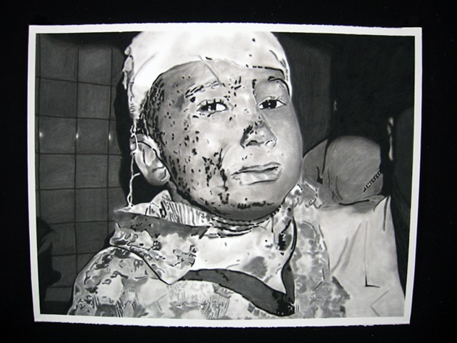 Little Boy with Bandage