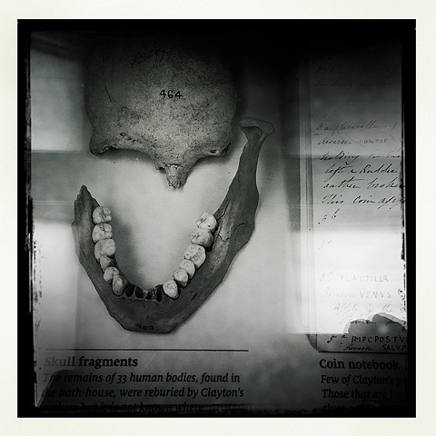 Chesters Museum - Human Skull