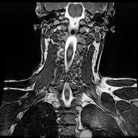 COR 3D FIESTA (mylogram) IM 10