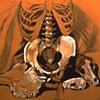 Bones and Holes