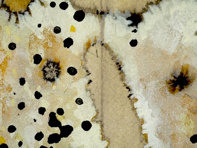 Antinuclear Antibodies (Detail 7)